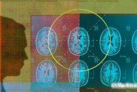 纽约大学和脸书通过人工智能进行MRI扫描合作